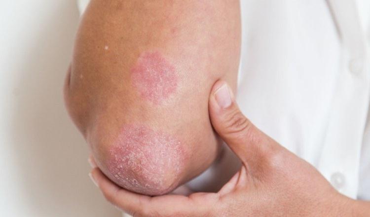 Piden prestar más atención a la psoriasis