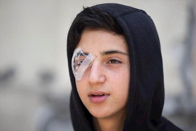 Heridos oculares por protestas en Chile anuncian querella contra Piñera
