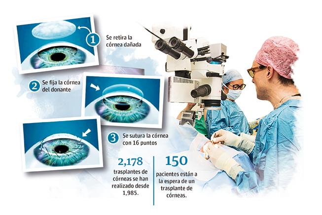 Alta demanda de trasplante de córneas