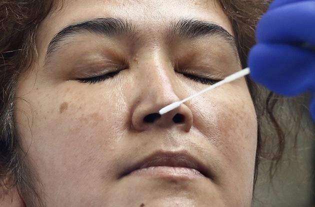 La muestra de hisopado nasofaríngeo consiste en introducir en uno de los orificios nasales un hisopo de nylon estéril flexible. Foto EFE