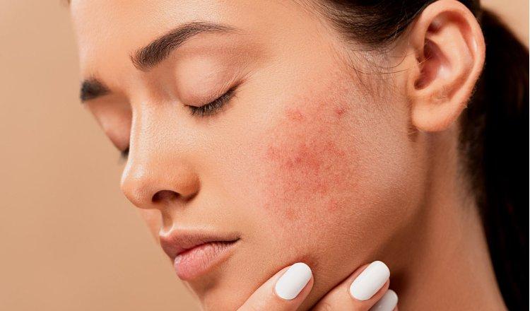Cuidados para la piel con dermatitis atópica