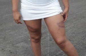 Fue golpeada muy fuerte en ambas piernas por policías en Chiriquí.