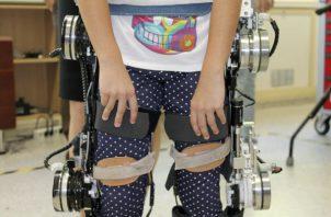 El exoesqueleto controlado por las señales procedentes del cerebro. Foto: EFE