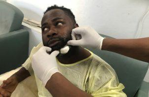 Chery Dieu-Nalio, quien recibió este lunes un tiro en la barbilla disparado por un senador haitiano a las puertas de la Cámara alta, recibe atención médica luego de los hechos en Puerto Príncipe. FOTO/EFE
