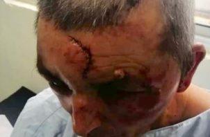 Luego de golpear brutalmente a la pareja en la cabeza y rostro se llevaron aproximadamente unos $5,000, prendas y el vehículo tipo camioneta propiedad de la pareja.