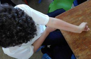 Los estudiantes del centro educativo en La Chorrera, en Panamá Oeste, presentan reacciones alérgicas en la piel.