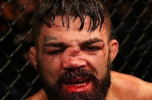 Mike Perry perdió el combate.