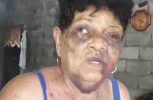 Ernestina Justavino Gutiérrez, de 88 años de edad, fue atacada el pasado domingo por un individuo de 25 años. Foto/Mayra Madrid