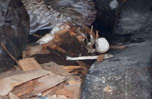 Aparecieron todos los huesos, menos el cráneo. Foto: Mayra Madrid
