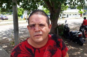 Magdaleno Almengor de 46 años, quien salió del Hospital Regional en David luego de permanecer por nueve días recluido debido a las heridas que sufrió, pidió una investigación objetiva. Foto/Mayra Madrid