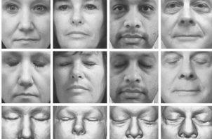 Un programa de reconocimiento facial identificó a 70 de 84 participantes en un estudio. Foto/ Mayo Clinic, via New England Journal of Medicine.