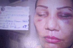 Lorenza Batista asegura que ha sufrido maltrato por su expareja. Foto: Melquíades Vásquez.
