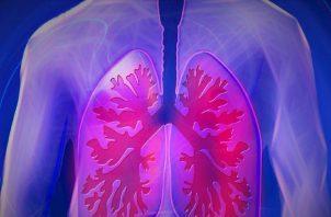 La hipertensión pulmonar es catalogada como una condición respiratoria crónica. Pixabay