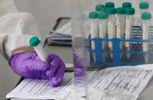 """El mes pasado, Cansino anunció en la revista médica """"The Lancet"""" los """"resultados prometedores"""" de su vacuna en las dos primeras fases de sus ensayos clínicos."""