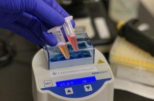 En el laboratorio de Zev Williams, los investigadores están desarrollando una prueba con saliva que arrojará resultados claros en unos 30 minutos. Foto / Dr. Zev Williams/Universidad de Columbia.