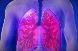 Se debe visibilizar esta enfermedad. Foto: Ilustrativa / Pixabay