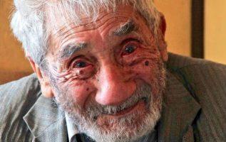 El anciano había sido sometido a una cirugía.